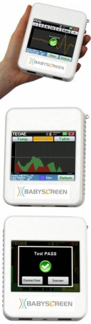 Medicine, Audiometry, Babyscreen ABR and TOAE